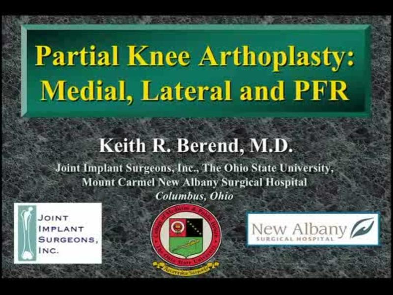Partial Knee Arthoplasty - Medial, Lateral and PFR