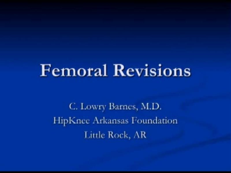 Femoral Revisions