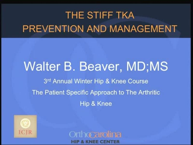 The Stiff TKA - Prevention and Management