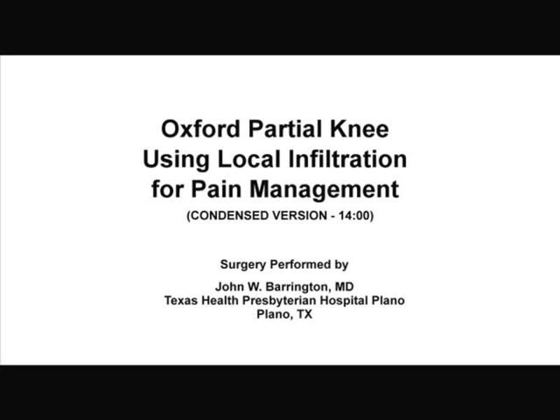 PKA - Oxford Partial Knee - Using Local Infiltration for Pai