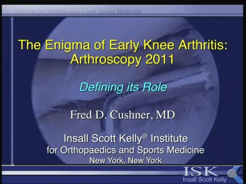 The Enigma of Early Knee Arthritis - Arthroscopy 2011 - Defi