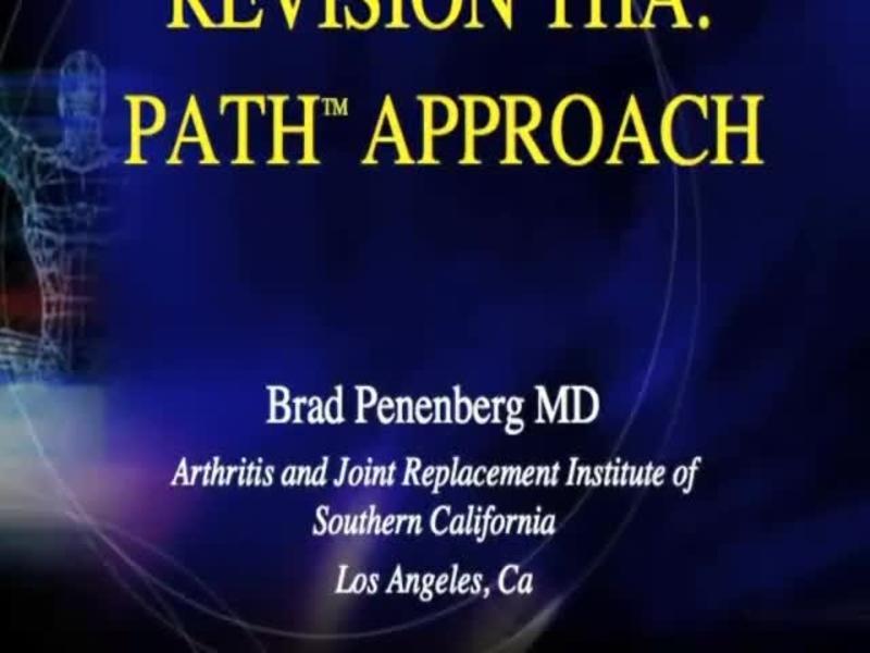 Revision THA Exposure - PATH Approach