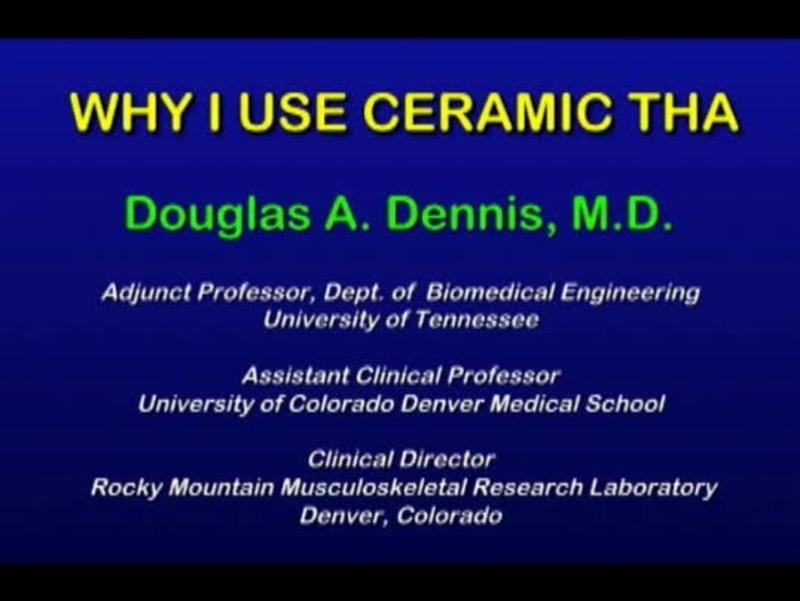 Why I Use Ceramic On Ceramic