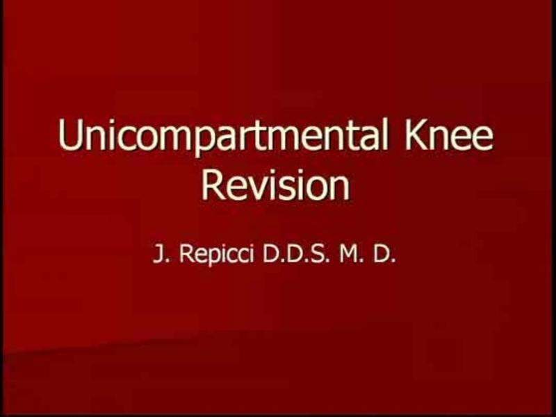 Tips for Successful Revision of Failed Medial Unicompartment