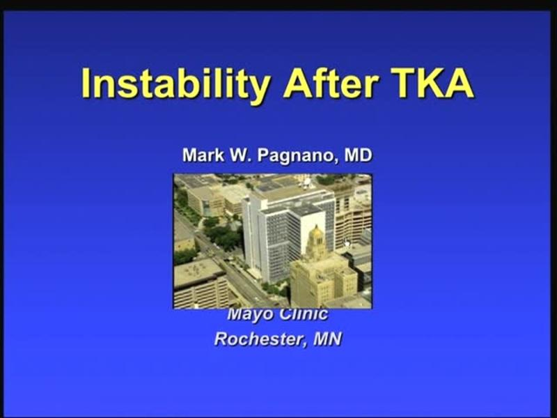 Instability After TKA