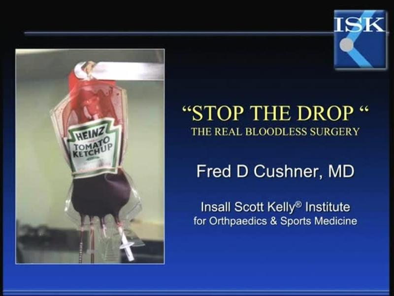Stop the Drop The Real Bloodless Surgery