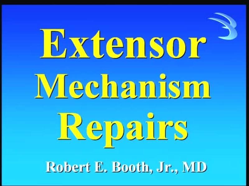 Extensor Mechanism Repairs