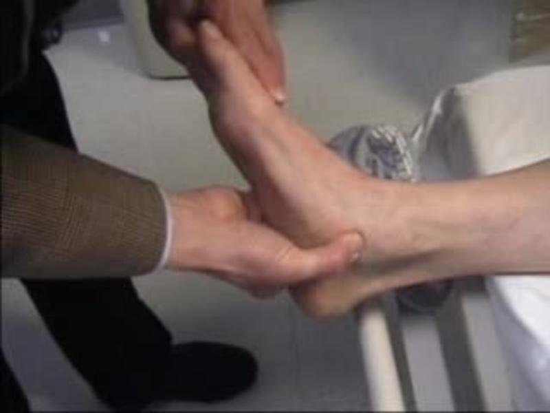 Adult flatfoot reconstruction