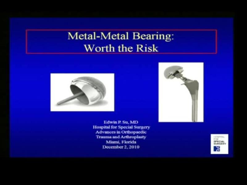Metal-Metal Bearing - Worth the Risk