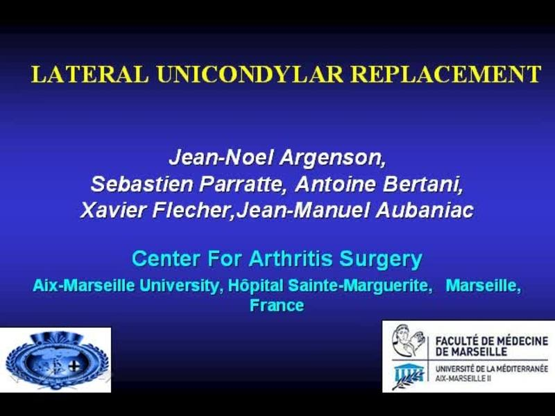 Lateral Unicondylar Knee Replacement