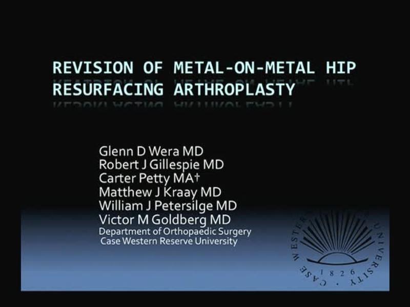 Revision of Metal-On-Metal Hip Resurfacing Arthroplasty