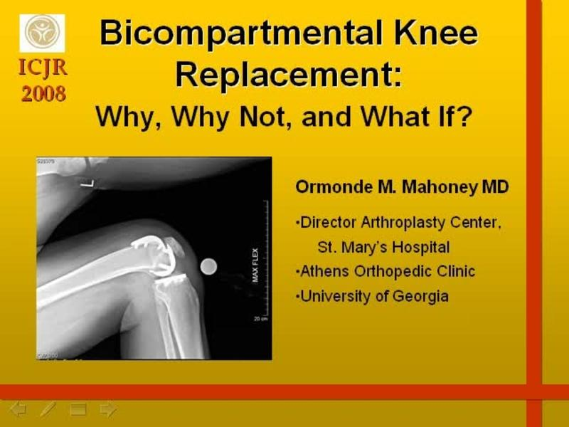 Bicompartmental Knee Replacement