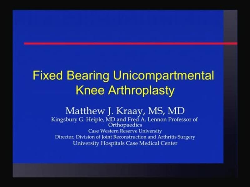Fixed Bearing Unicompartmental Arthroplasty