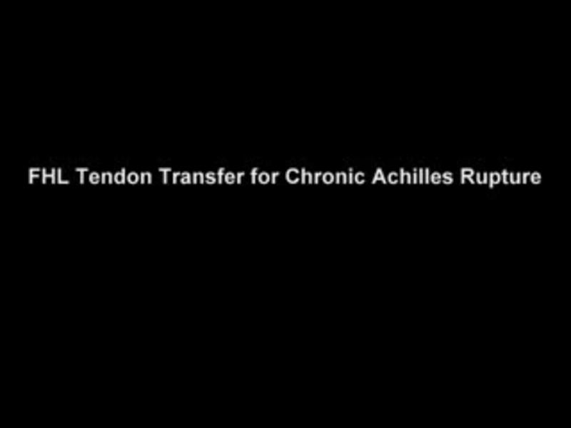 FHL Transfer for Chronic Achilles Rupture