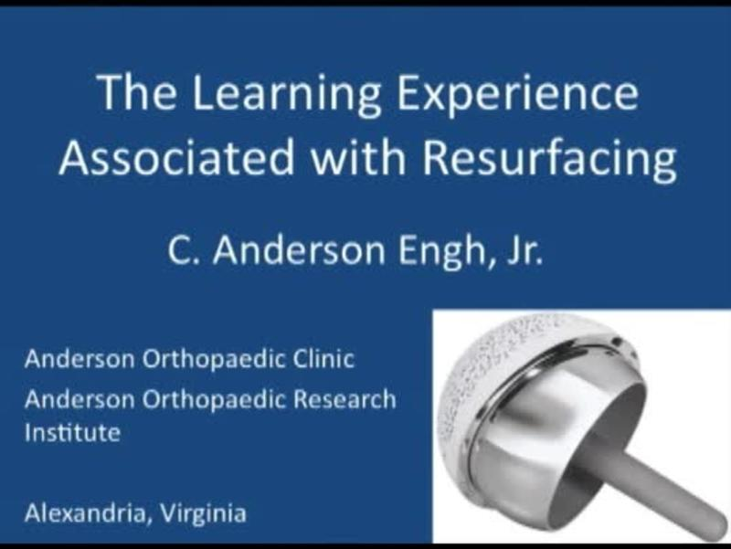The Learning Experience Associated With Resurfacing