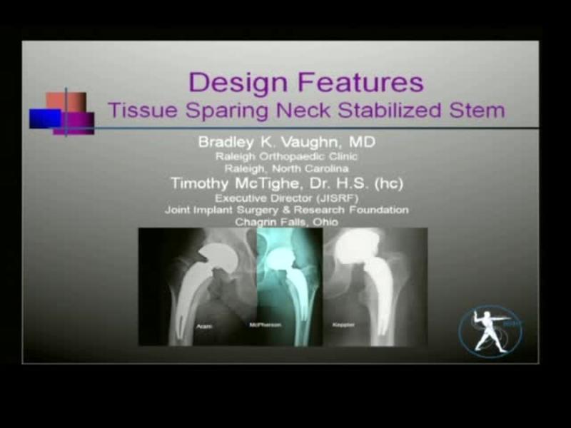 Design Features - Tissue Sparing Neck Stabilized Stem