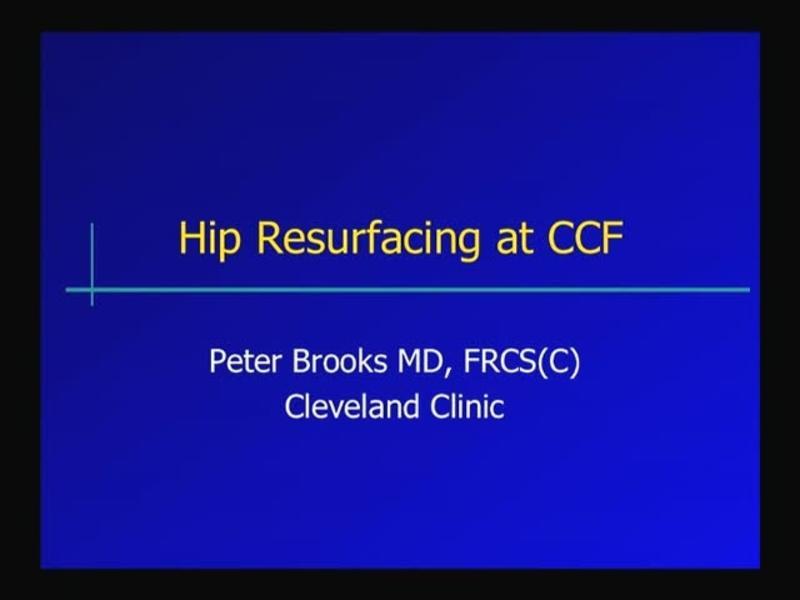 Hip Resurfacing at CCF