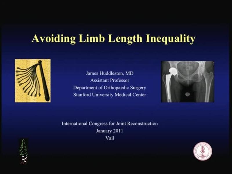 Avoiding Limb Length Inequality