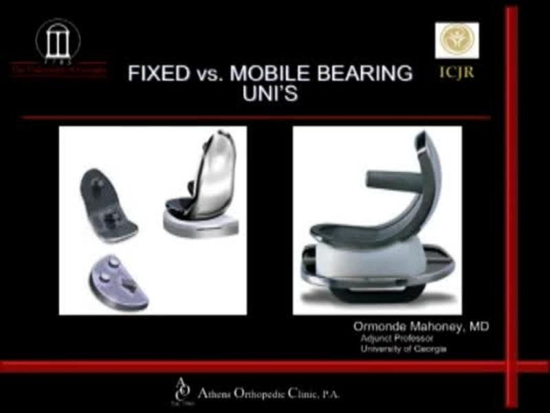 Fixed vs Mobile UNI's
