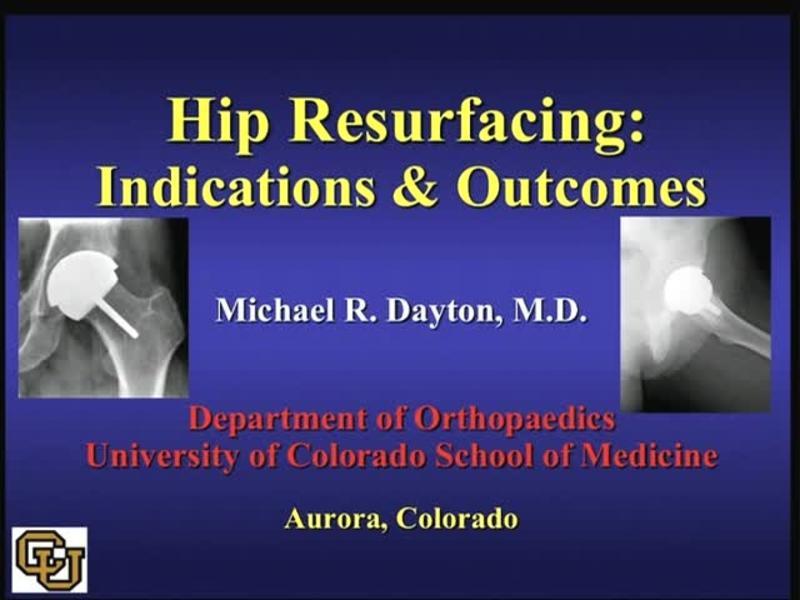 Hip Resurfacing - Indications & Outcomes