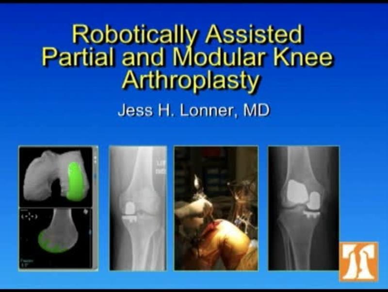 Role Of Robotics In Knee Arthroplasty