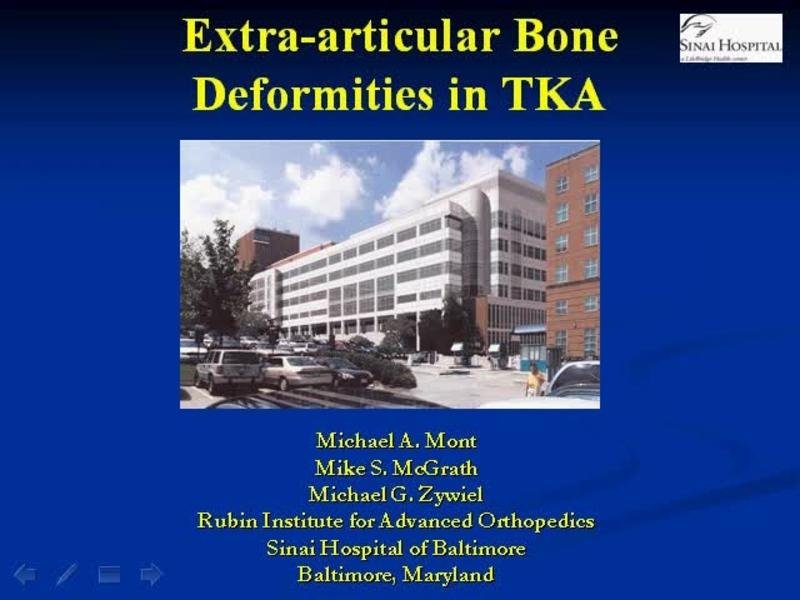 Management of Extra-articular Deformities in TKA