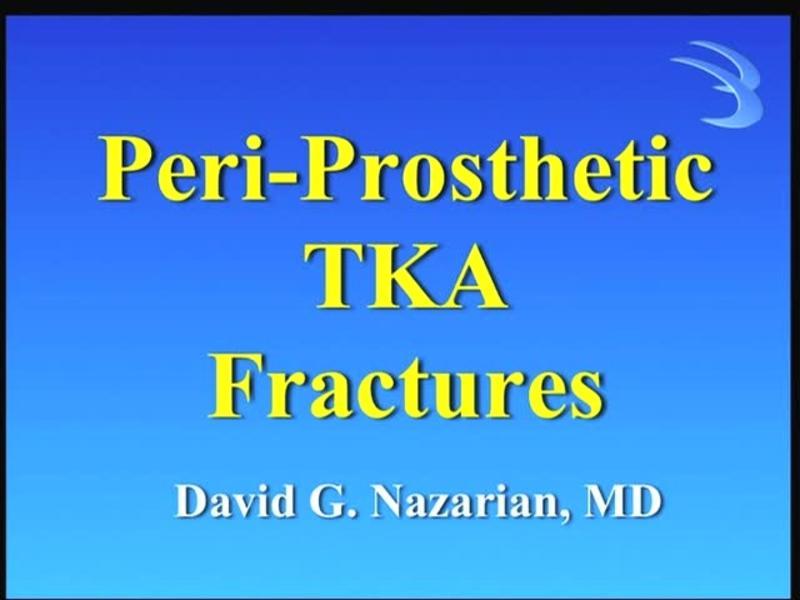 Peri-Prosthetic TKA Fractures