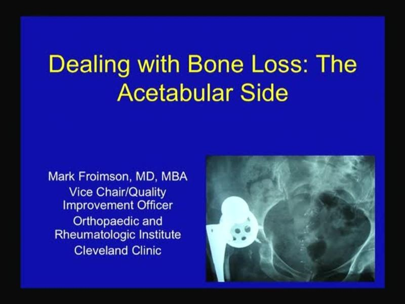 Dealing with Bone Loss - The Acetabular Side