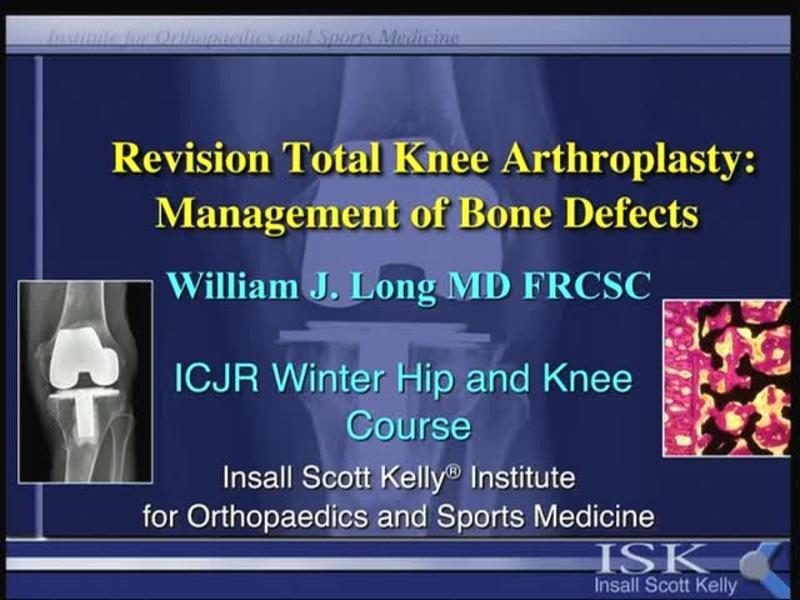 Revision Total Knee Arthroplasty - Management of Bone Defect