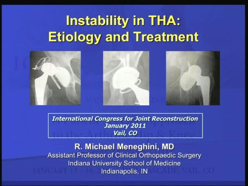 Instability in THA - Etiology and Treatment