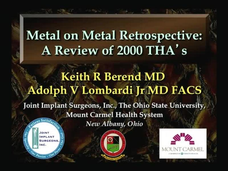 Metal on Metal Retrospective - A Review of 2000 THAs