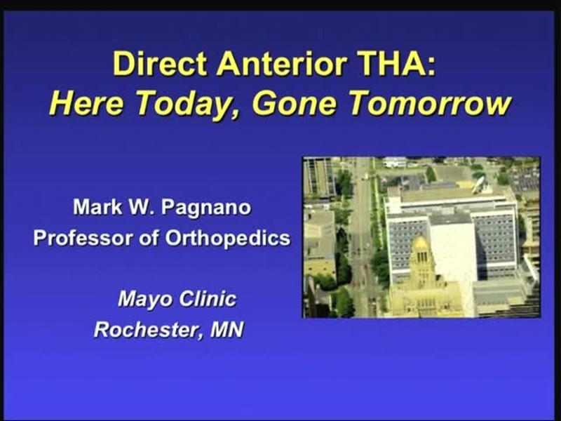 Direct Anterior THA - Here Today, Gone Tomorrow