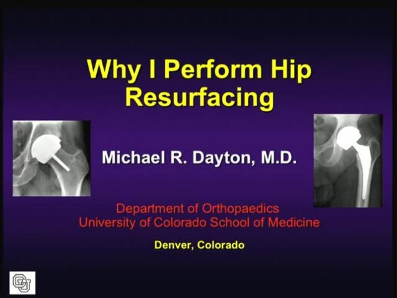 Why I Perform Hip Resurfacing