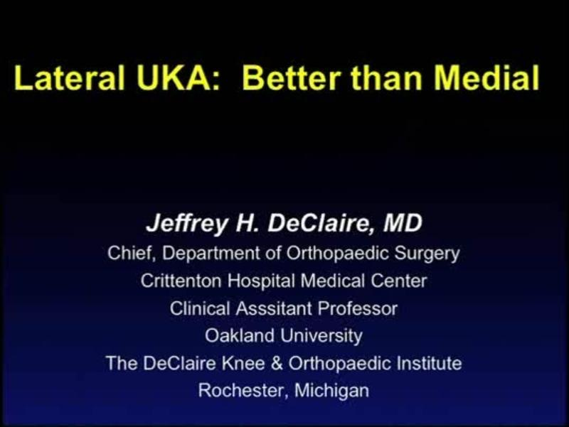 Lateral UKA -  Better than Medial