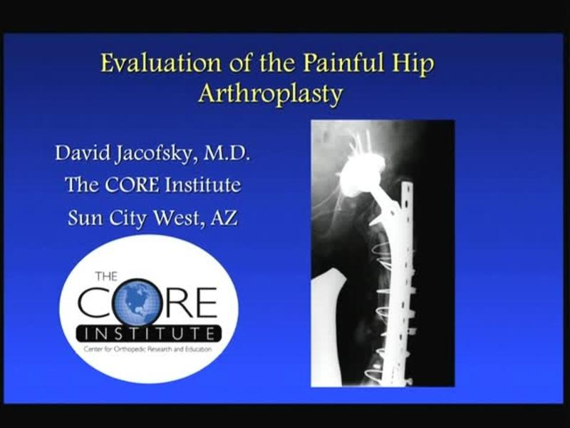 Evaluation of the Painful Hip Arthroplasty