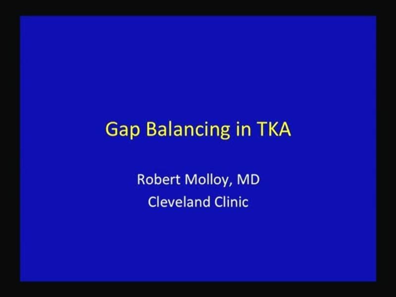 Gap Balancing in TKA