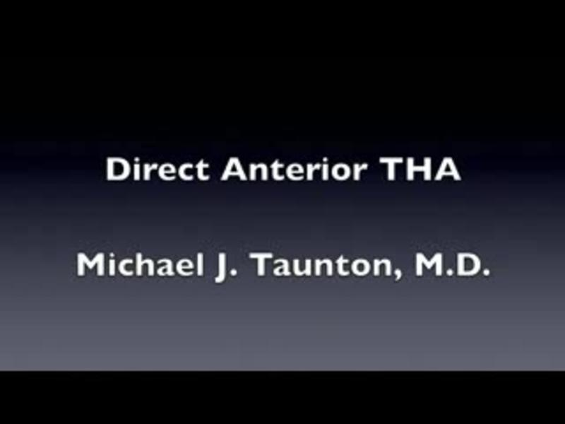 Direct Anterior Total Hip Arthroplasty