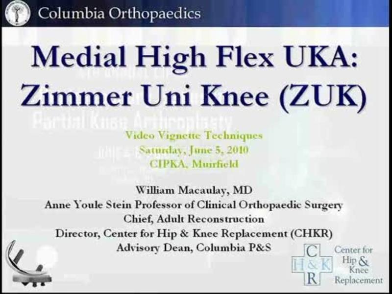 Medial High Flex UKA - Zimmer Uni Knee (ZUK)