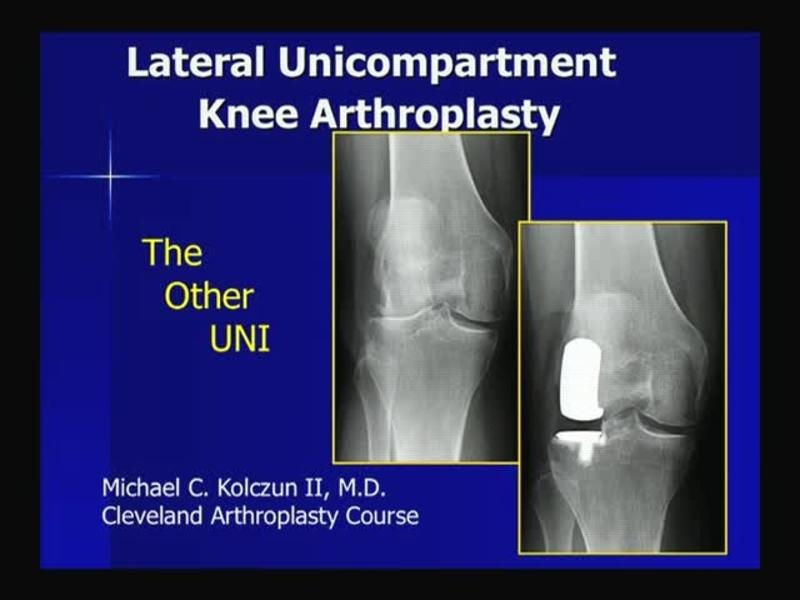 Lateral Unicompartment  Knee Arthroplasty - The Other Uni