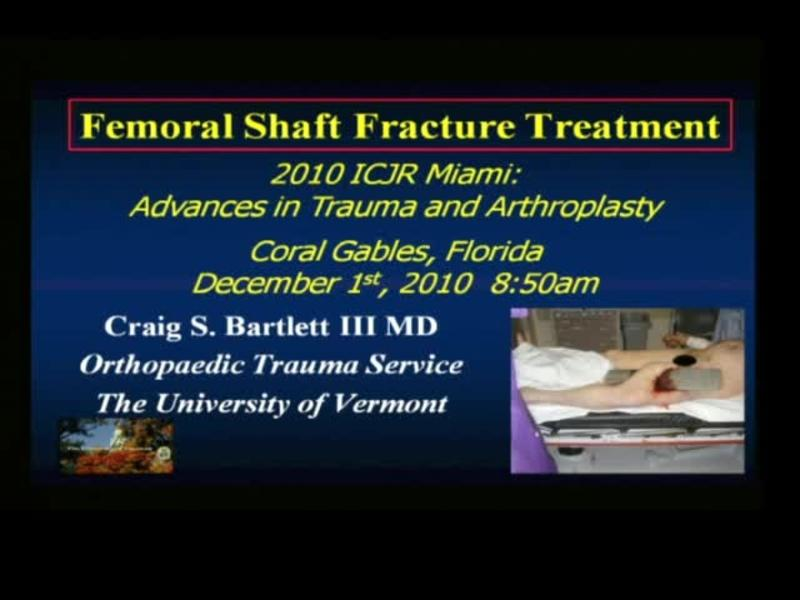 Femoral Shaft Fracture Treatment