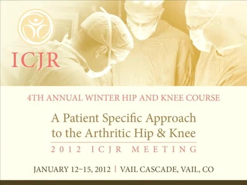 The Science Behind Gender Specific Total Knee Arthroplasty