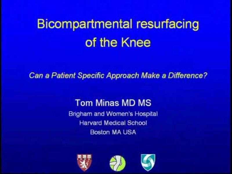 Bicompartmental resurfacing of the Knee Can a Patient Specif