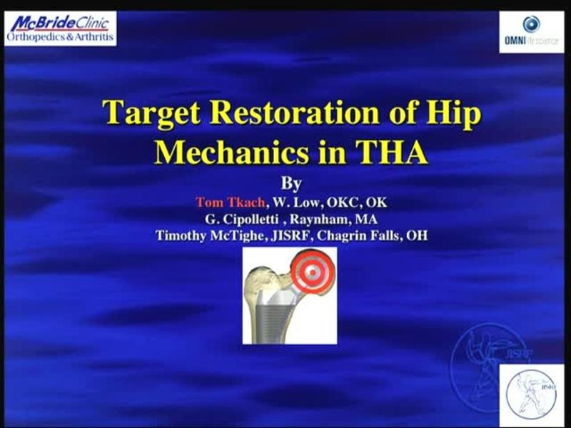 Target Restoration of Hip Mechanics in THA