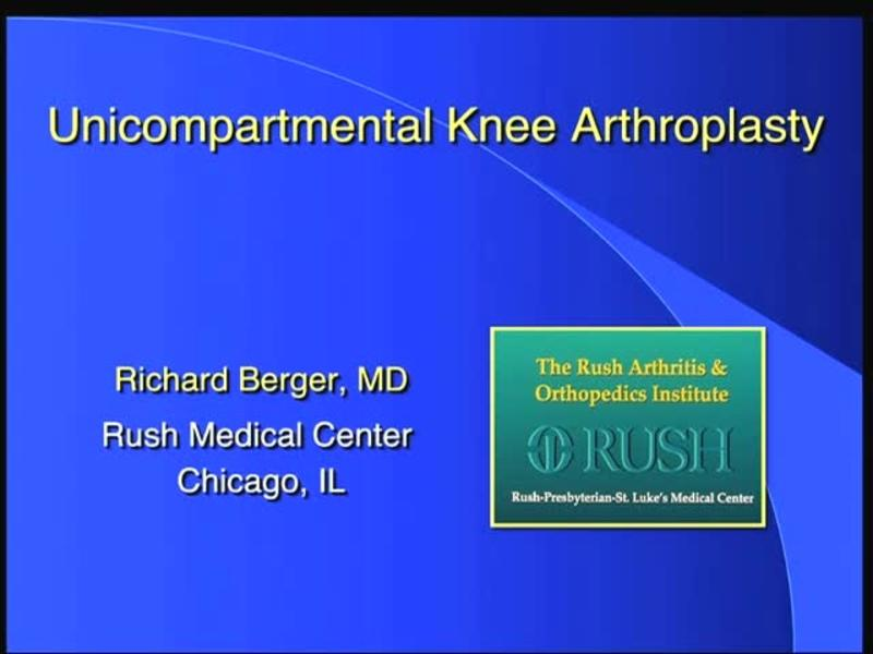 Unicompartmental Knee Arthroplasty - Superb Long Term Result
