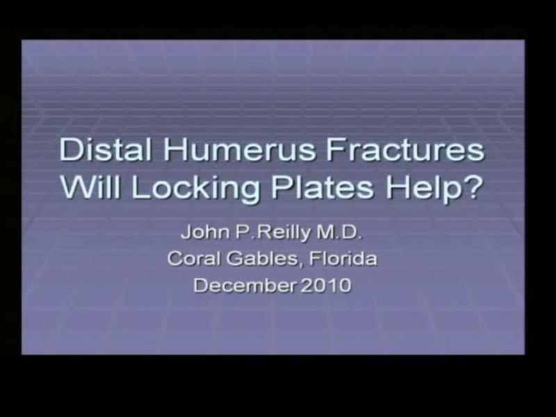 Distal Humerus Fractures - Will Locking Plates Help