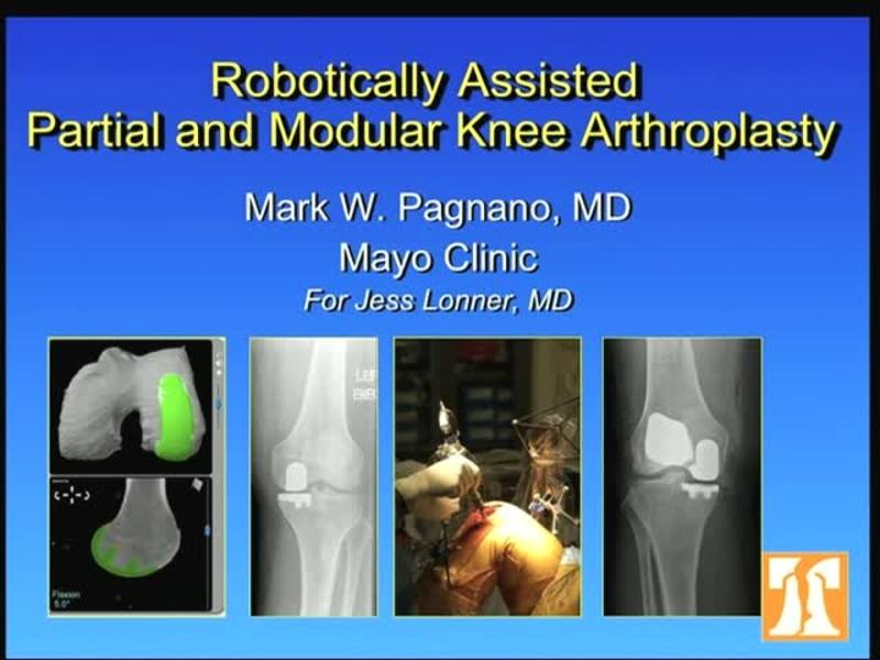 Robotically Assisted Partial and Modular Knee Arthroplasty
