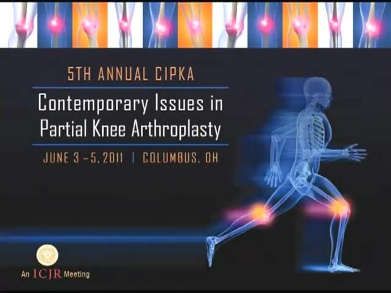 Custom Bicompartmental Knee Arthroplasty