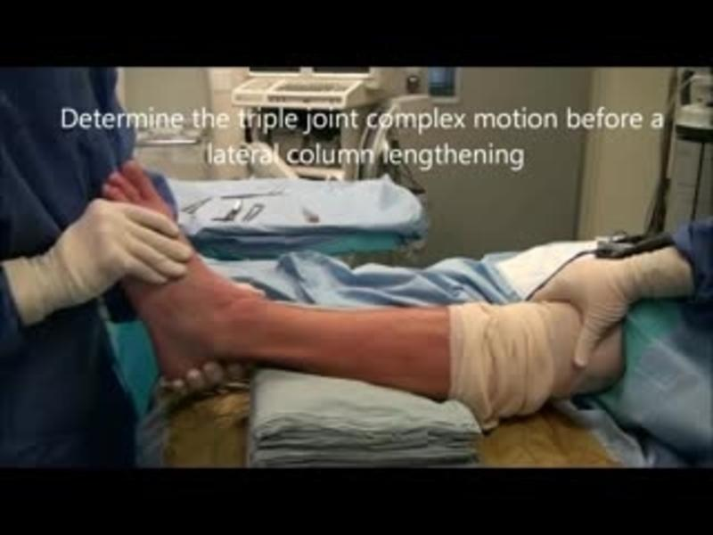 Preoperative Triple Joint Motion