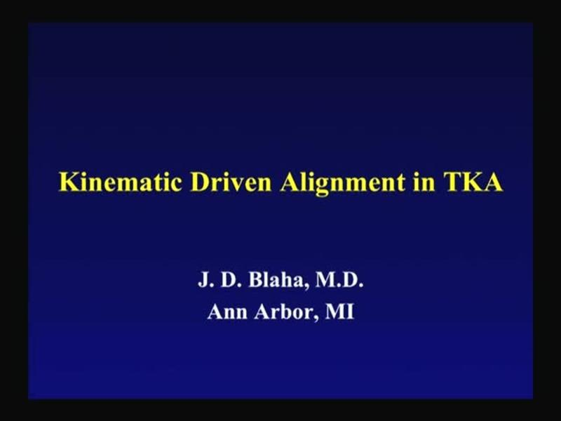 Kinematic Driven Alignment in TKA