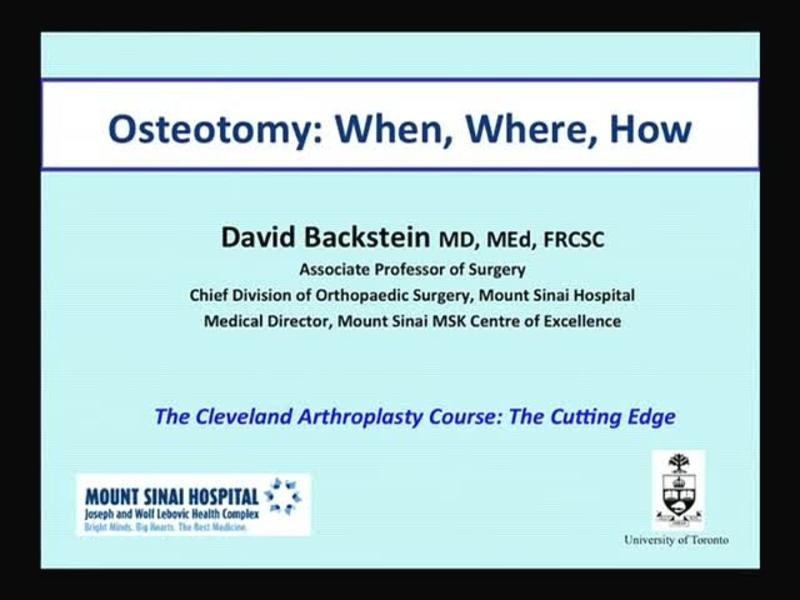 Osteotomy - When, Where, How